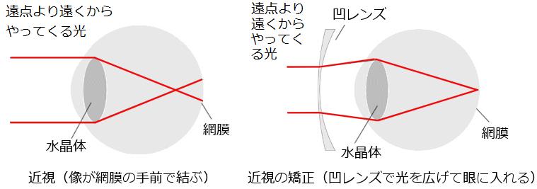 近視と遠視 眼の仕組み(3): 光...