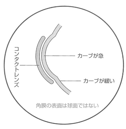 角膜の形状に合わせたコンタクトレンズ